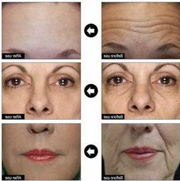 Hyaluronic Acid + Matrixyl 3000 Peptide Gel Cream Face & Eye
