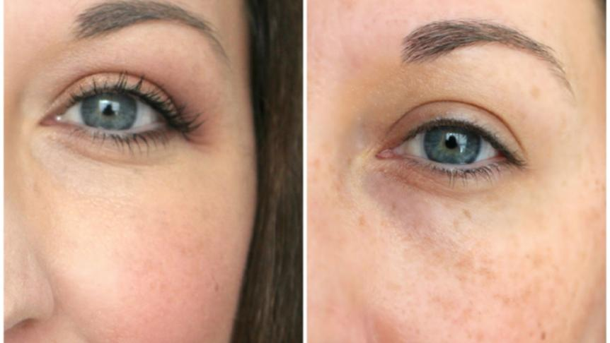 Hyaluronic Acid C Eye Lift Serum Remove Bags Firm