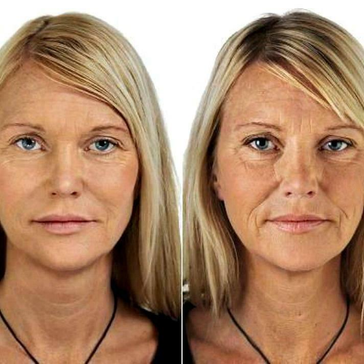 2 Acid Anti-Aging Moisturizer