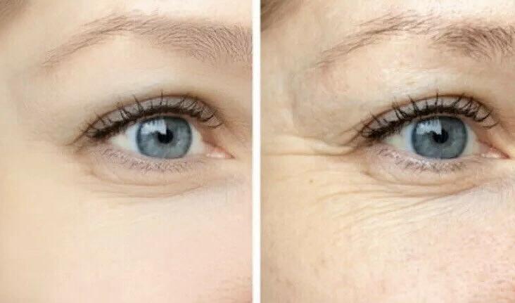 2 Hyaluronic Anti-Aging Moisturizer