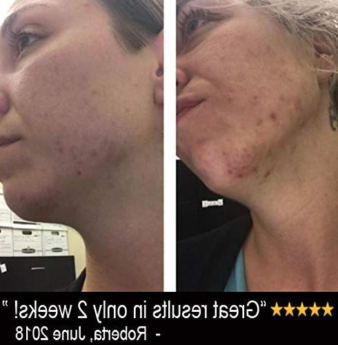 Vitamin with Hyaluronic Acid and - Skin Ingredients Acne, Wrinkle, Anti Aging, Age Spots Sun Damage 1
