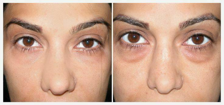 Hyaluronic Eye Circles, Wrinkles