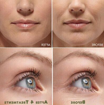 hyaluronic acid gel cream anti aging wrinkle