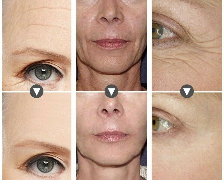 Hyaluronic 3000 Face Eye