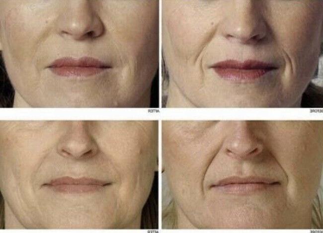 2 Hyaluronic Anti-Aging Fine Line Face & Moisturizer