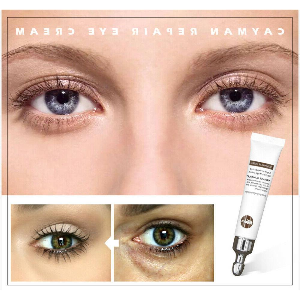 Magic Cream Eye Serum Wrinkles Anti-Aging