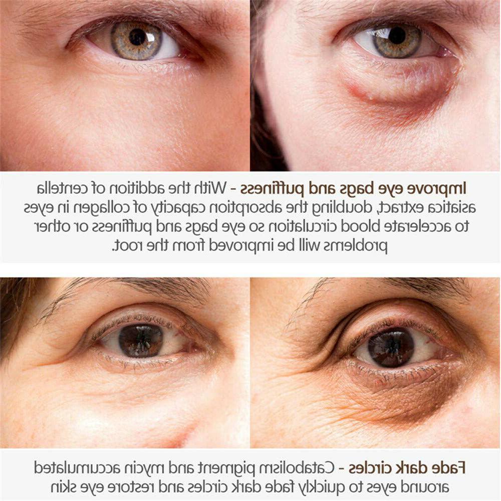 Magic Eye Serum Circles Wrinkles Bags Anti-Aging