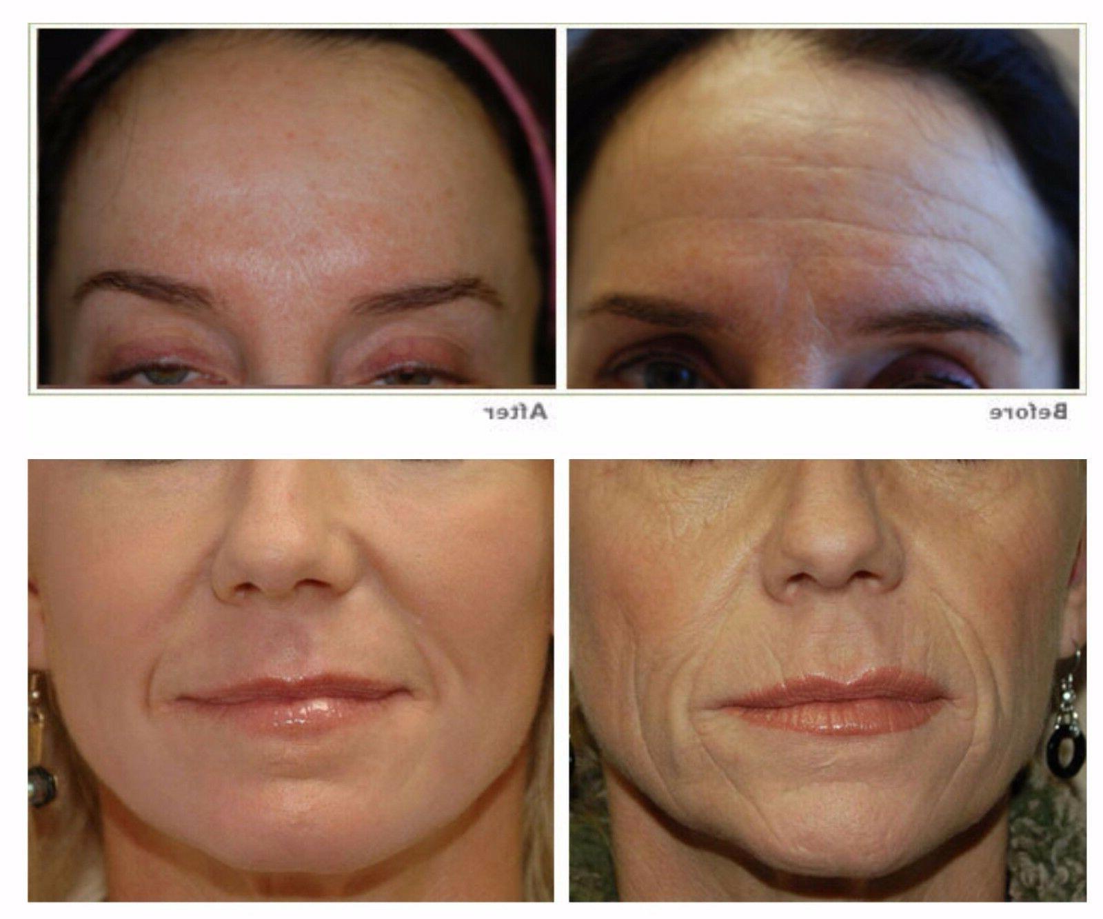 MINERAL SILICON Serum Skin Renewal 1 oz