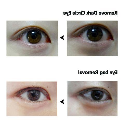 Remove Eye Granules Eye