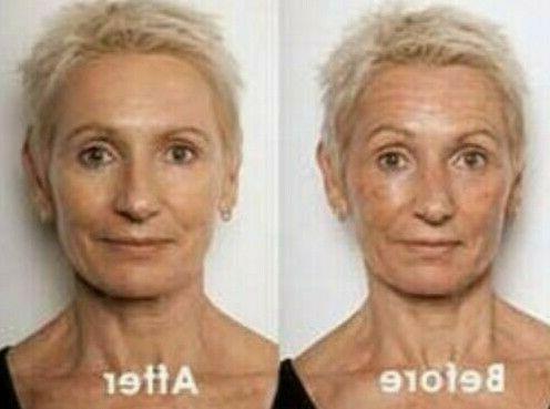 retinol hyaluronic acid and vitamin c anti