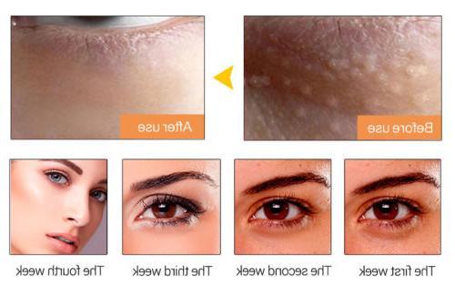 US Wrinkle Eye Circle Collagen Serum