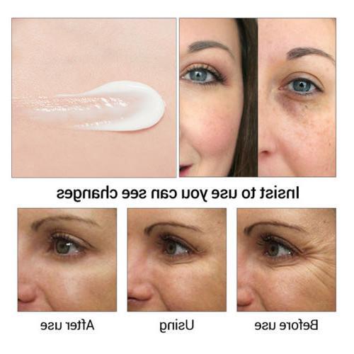 US Eye Firming Circle Puffiness Eye Serum